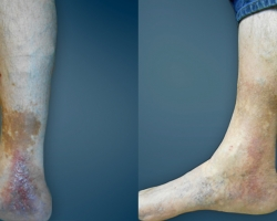 Varicose & Spider Veins Symptom