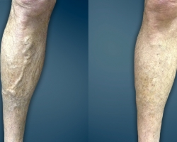 Varicose & Spider Veins Cause