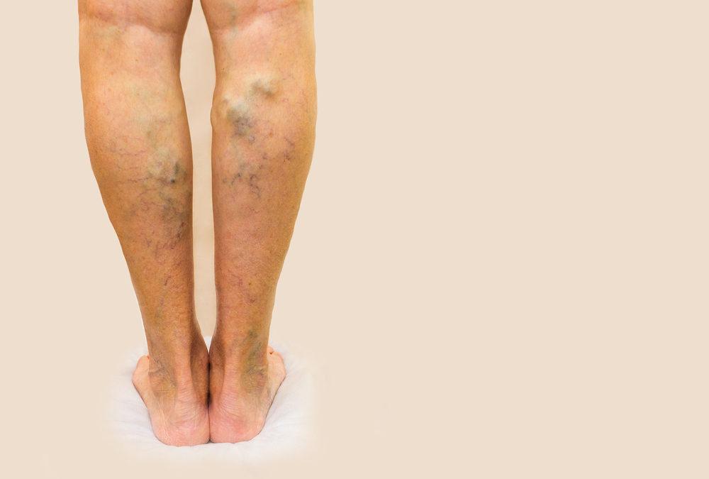 Symptoms Of Vien Disease